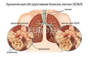 Лечение сухого кашля при беременности