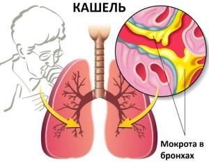 Чем лечить влажный кашель