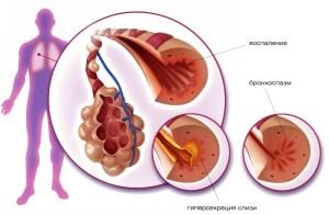 Как лечить кашель при беременности в 1 триместре
