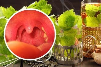 Народные средства для лечения гнойной ангины
